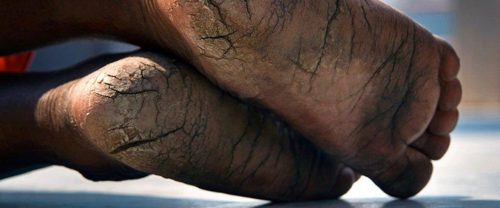 piedi segnati di un uomo indiano